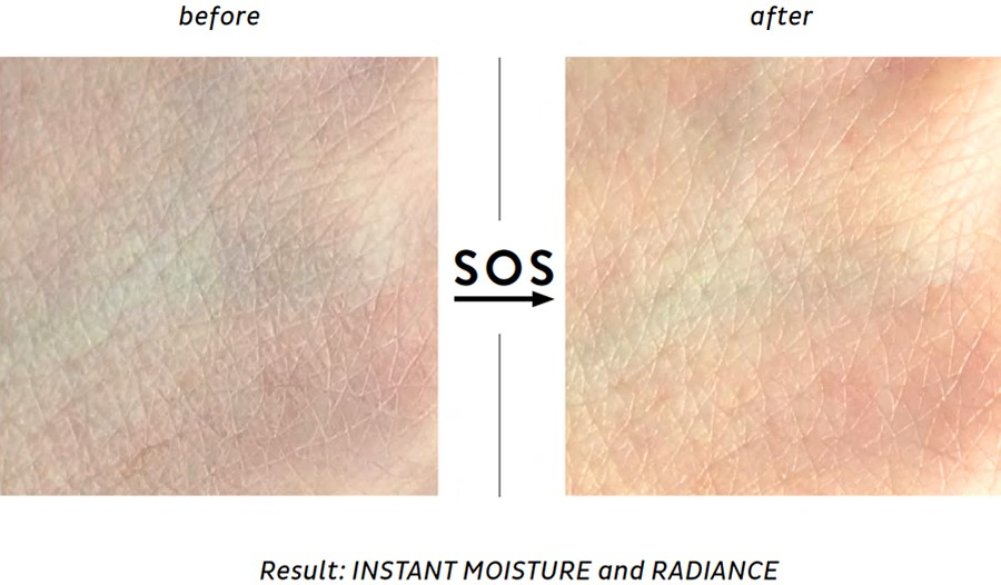 SOS Hydra Mask before and after